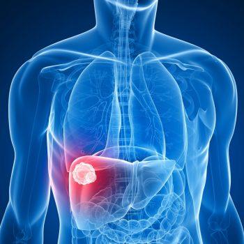 bigstock-liver-cancer-75701764